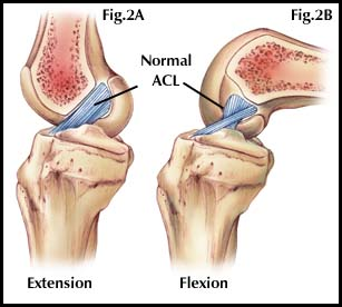 Acl Injury In The Female Athlete Part 2 Proactive Physical Therapy