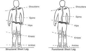 Leg Length Differences Affecting Athletic Performance and Physical ...